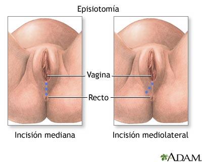 Granos en la vajina y ardor tratamiento