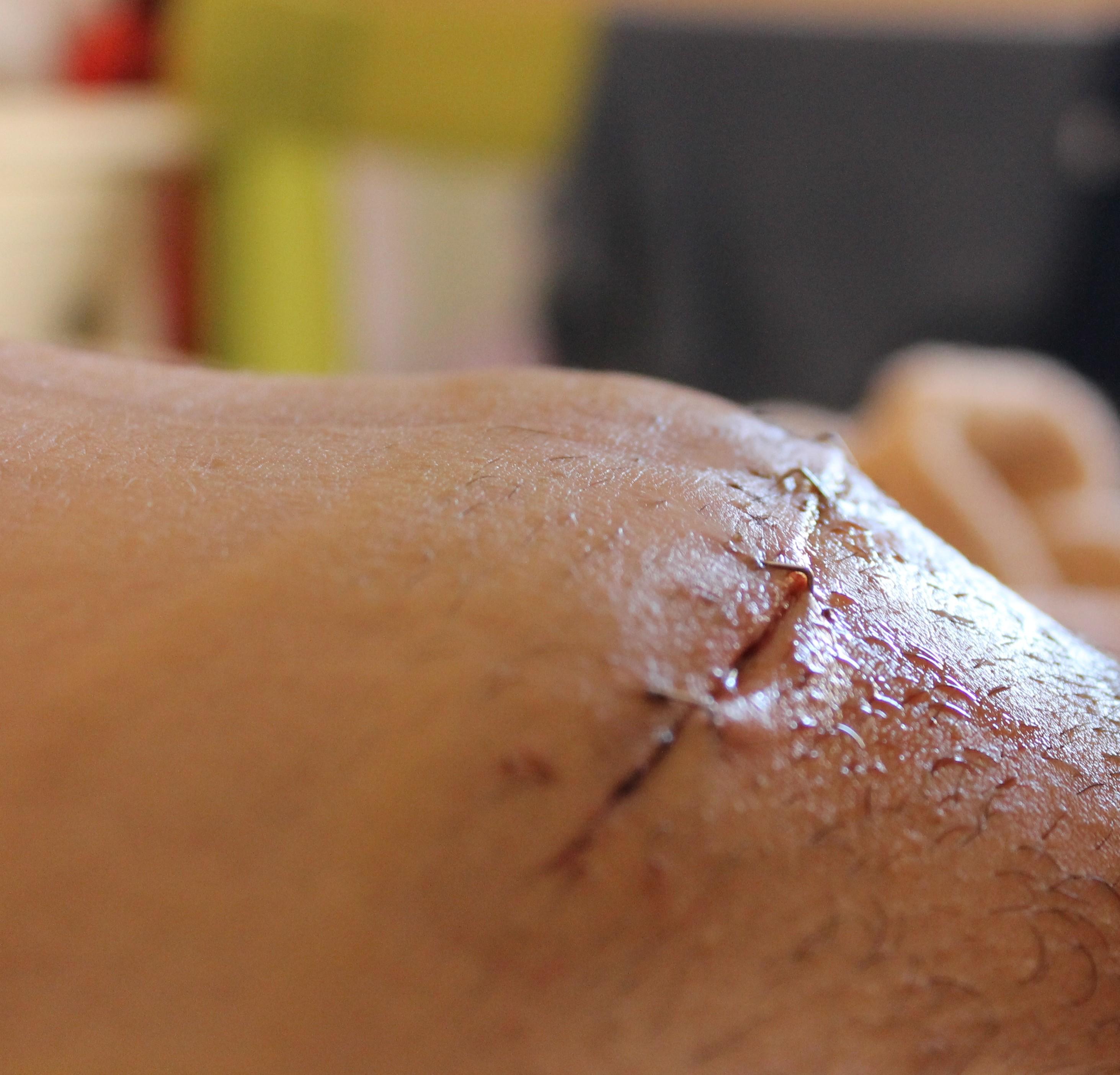 puntos de sutura infectados
