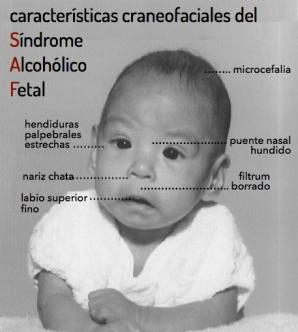 http://neuropediatra.org/2014/09/17/sindrome-alcoholico-fetal/
